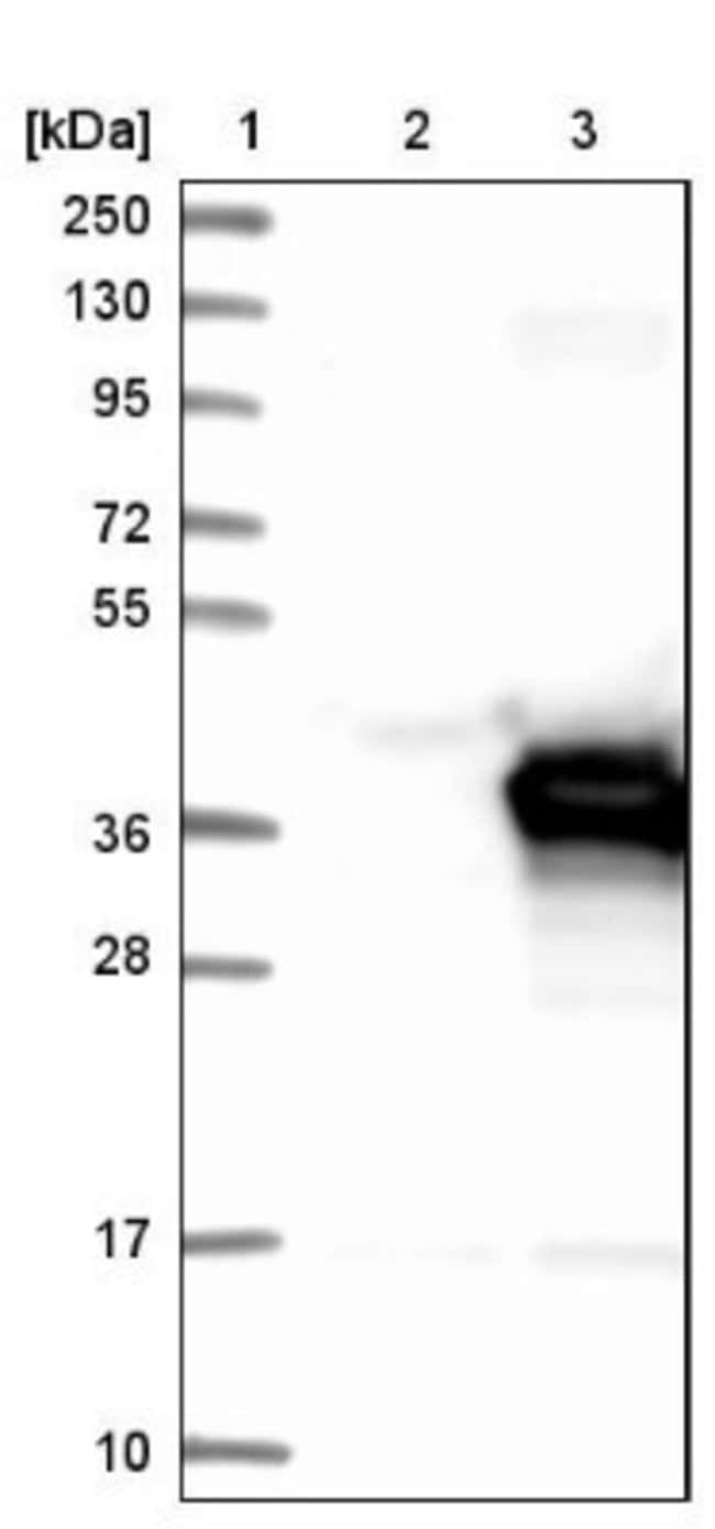 anti-PECR, Polyclonal, Novus Biologicals 0.1mL; Unlabeled:Life Sciences
