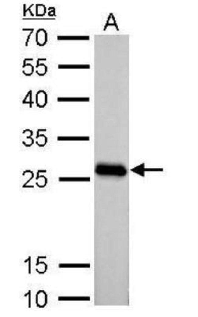 anti-PGAM2, Polyclonal, Novus Biologicals 0.1mg; Unlabeled:Life Sciences