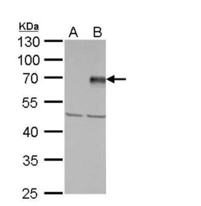 anti-PIASy, Polyclonal, Novus Biologicals 0.1mg; Unlabeled:Antibodies