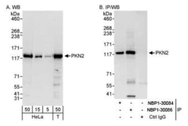 anti-PKN2, Polyclonal, Novus Biologicals 0.1mL; Unlabeled:Life Sciences