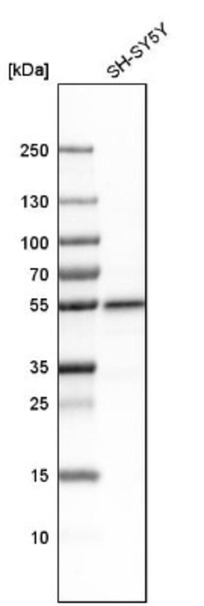 anti-PLD3/Phospholipase D3, Polyclonal, Novus Biologicals 0.1mL; Unlabeled:Life