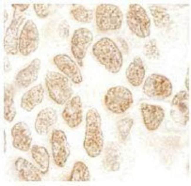 anti-PPIG, Polyclonal, Novus Biologicals 0.1mL; Unlabeled:Life Sciences