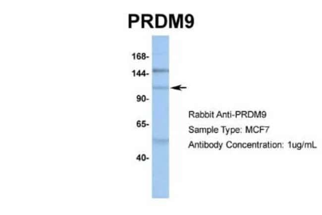 anti-PRDM9, Polyclonal, Novus Biologicals 0.05mg; Unlabeled:Life Sciences