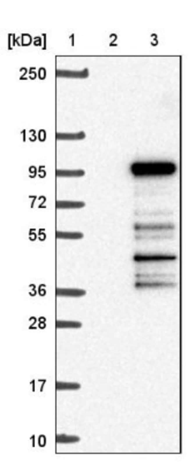 anti-PRPF3, Polyclonal, Novus Biologicals 0.1mL; Unlabeled:Life Sciences