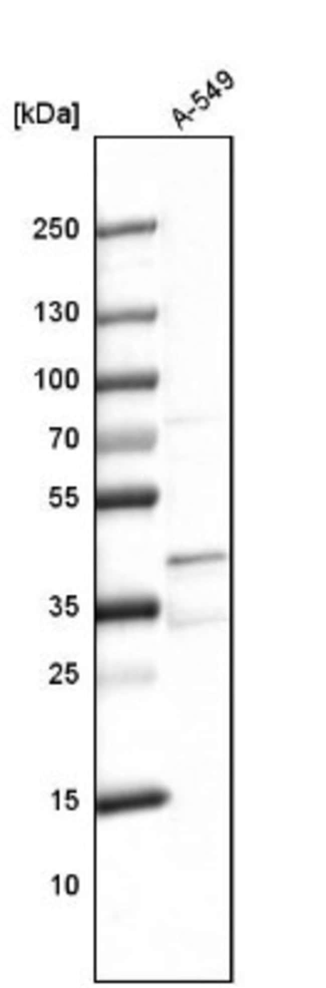 anti-PRR11, Polyclonal, Novus Biologicals 0.1mL; Unlabeled:Life Sciences