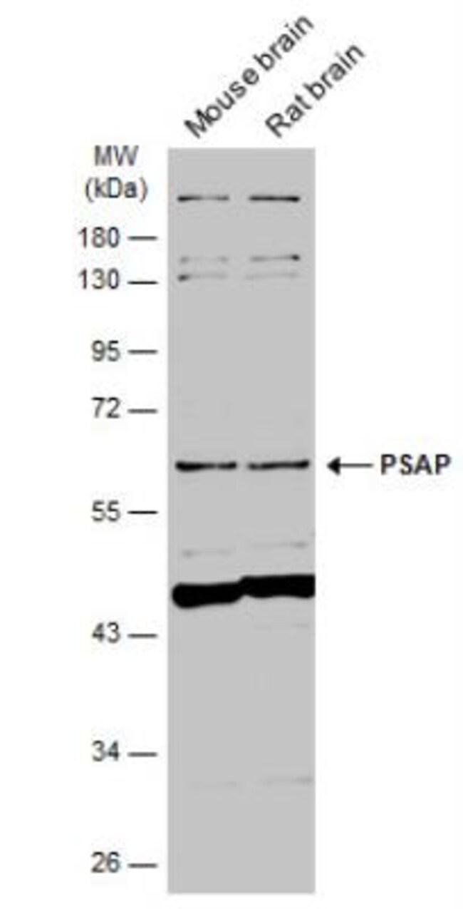 anti-PSAP, Polyclonal, Novus Biologicals 0.1mL; Unlabeled:Life Sciences