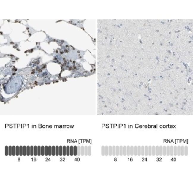 anti-PSTPIP1, Polyclonal, Novus Biologicals 0.1mL; Unlabeled:Antibodies
