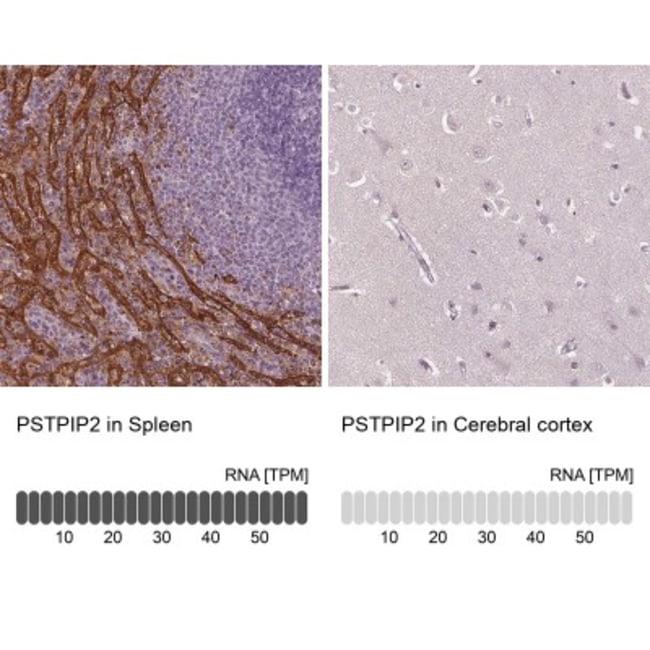 anti-PSTPIP2, Polyclonal, Novus Biologicals 0.1mL; Unlabeled:Life Sciences