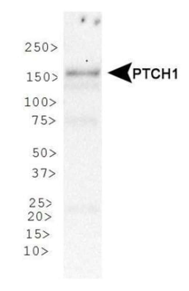 anti-Patched 1/PTCH, Polyclonal, Novus Biologicals:Antibodies:Primary Antibodies