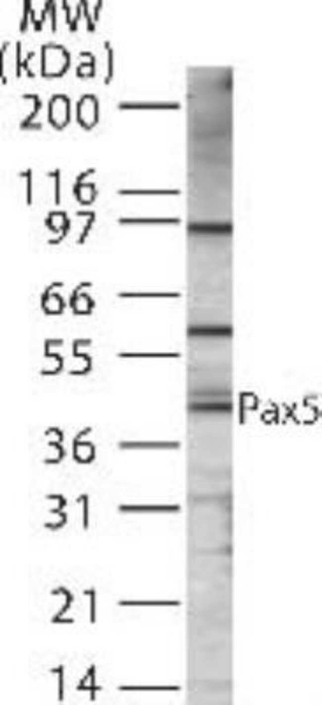 anti-Pax5/BSAP, Polyclonal, Novus Biologicals:Antibodies:Primary Antibodies
