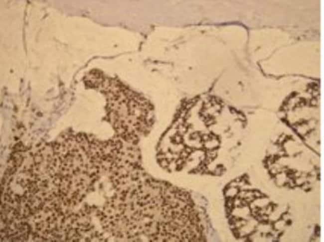 Rabbit anti-Progesterone R/NR3C3, Clone: P21-S, Novus Biologicals:Antibodies:Primary