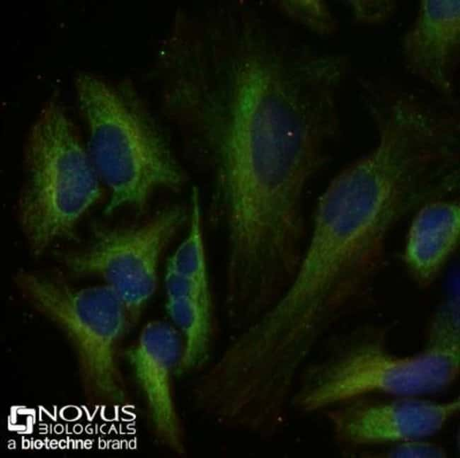 anti-Pyruvate Carboxylase, Polyclonal, Novus Biologicals:Antibodies:Primary