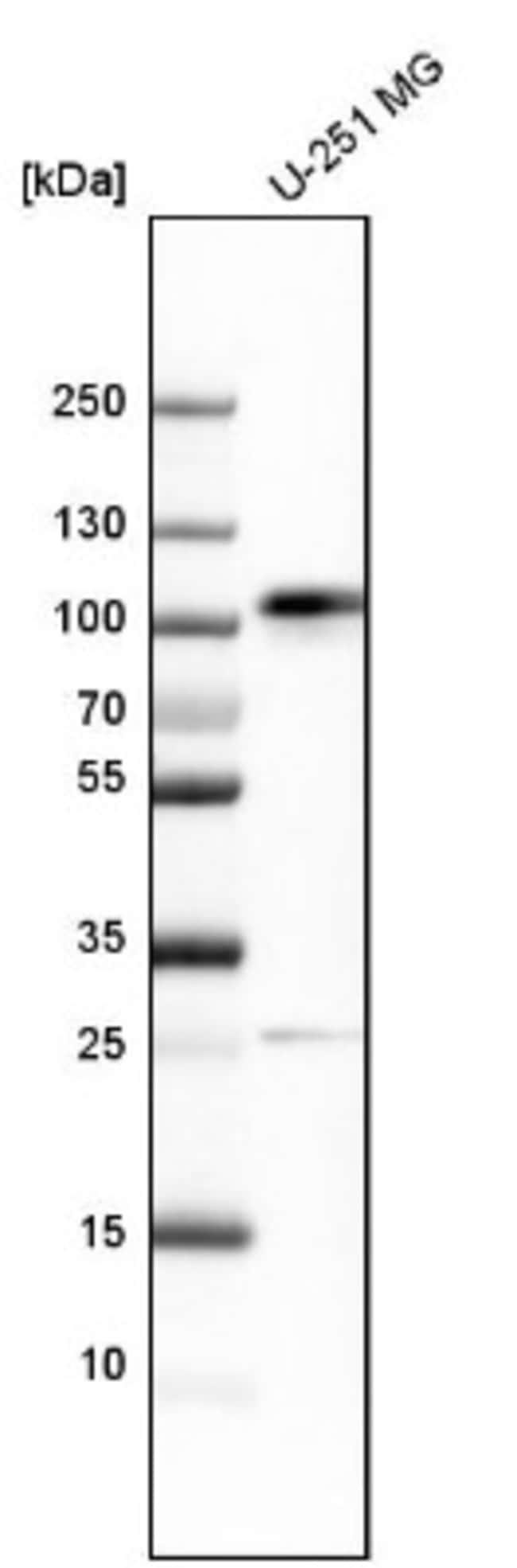 anti-QSOX2, Polyclonal, Novus Biologicals 0.1mL; Unlabeled:Life Sciences