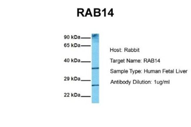 RAB14 Rabbit anti-Human, Mouse, Rat, Porcine, Bovine, Canine, Goat, Monkey,