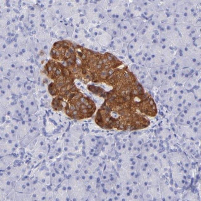 anti-RAB3B, Polyclonal, Novus Biologicals 0.1mL; Unlabeled:Life Sciences