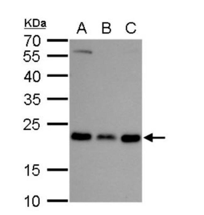 anti-RAB6A, Polyclonal, Novus Biologicals 0.1mL; Unlabeled:Life Sciences