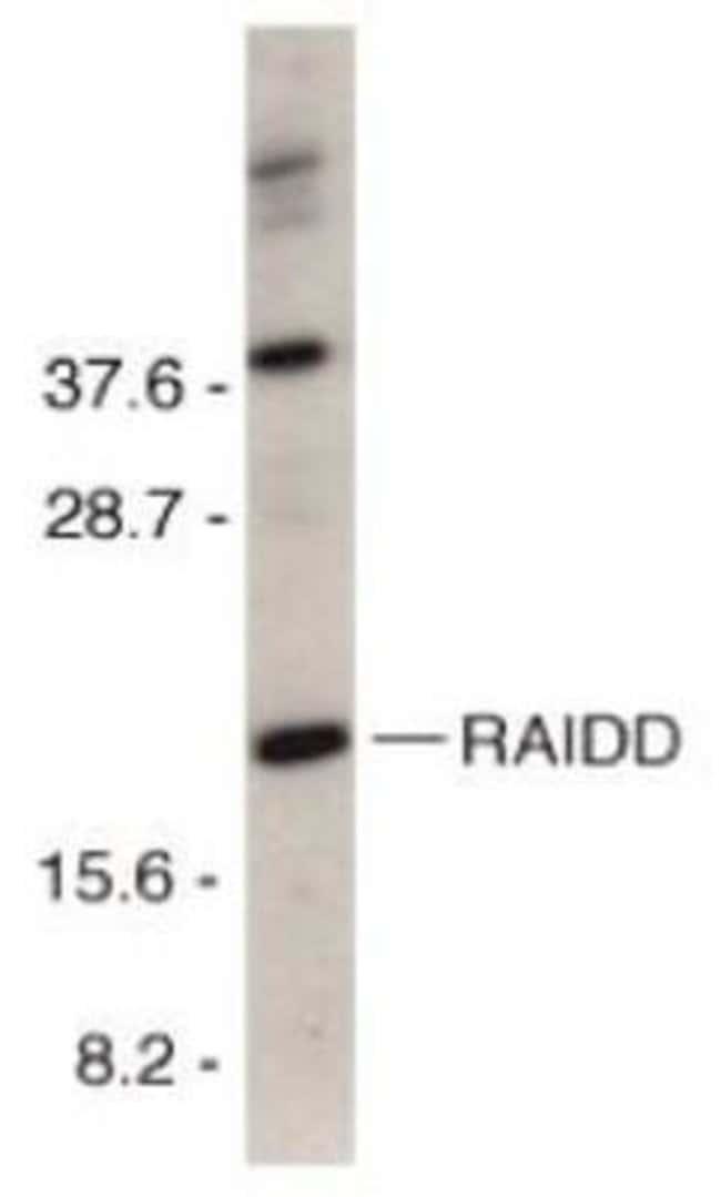 anti-RAIDD/CRADD, Polyclonal, Novus Biologicals 0.1mg; Unlabeled:Life Sciences