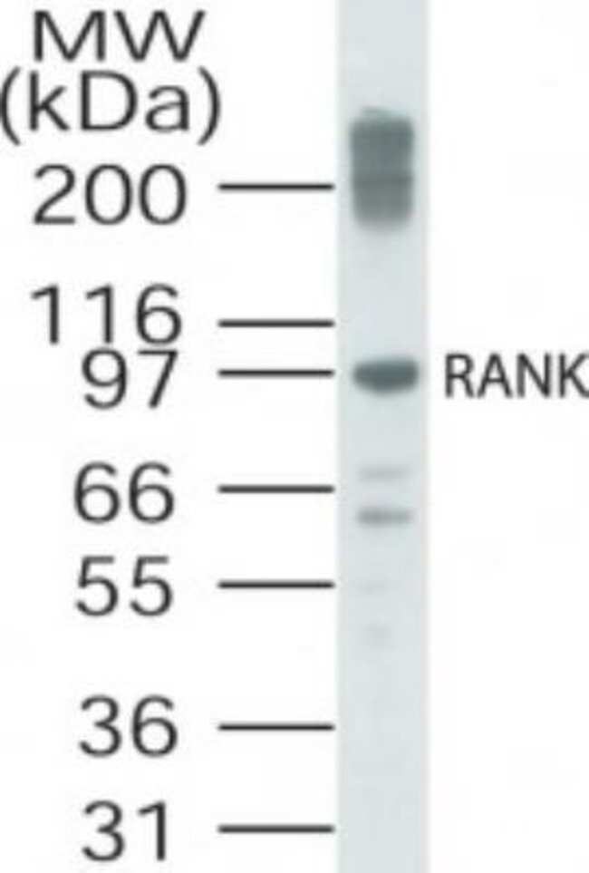 anti-RANK/TNFRSF11A, Polyclonal, Novus Biologicals:Antibodies:Primary Antibodies