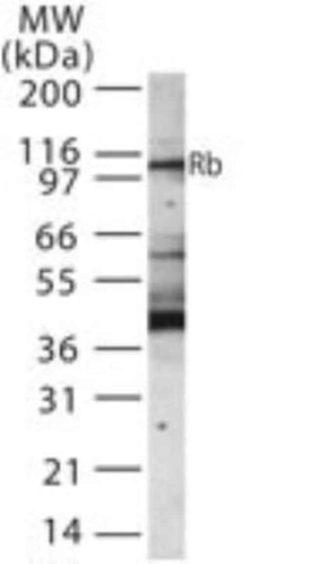 anti-RB1, Polyclonal, Novus Biologicals:Antibodies:Primary Antibodies