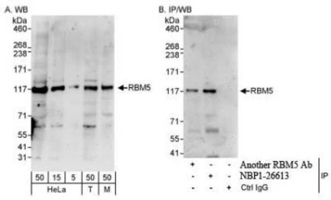 anti-RBM5, Polyclonal, Novus Biologicals 0.1mg; Unlabeled:Life Sciences
