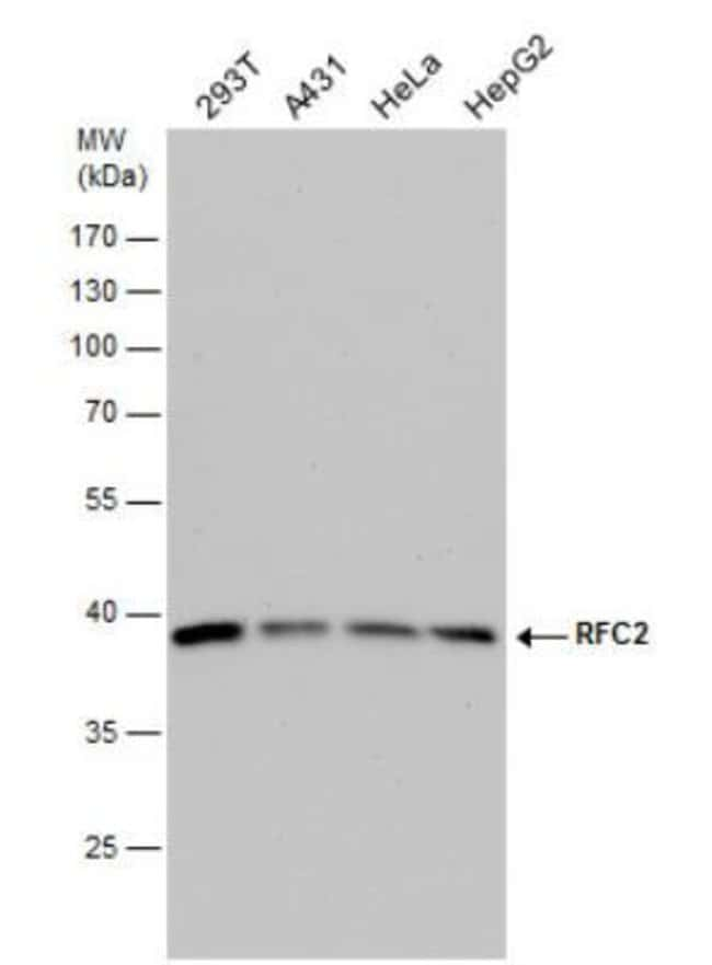 anti-RFC2, Polyclonal, Novus Biologicals 0.1mL; Unlabeled:Antibodies