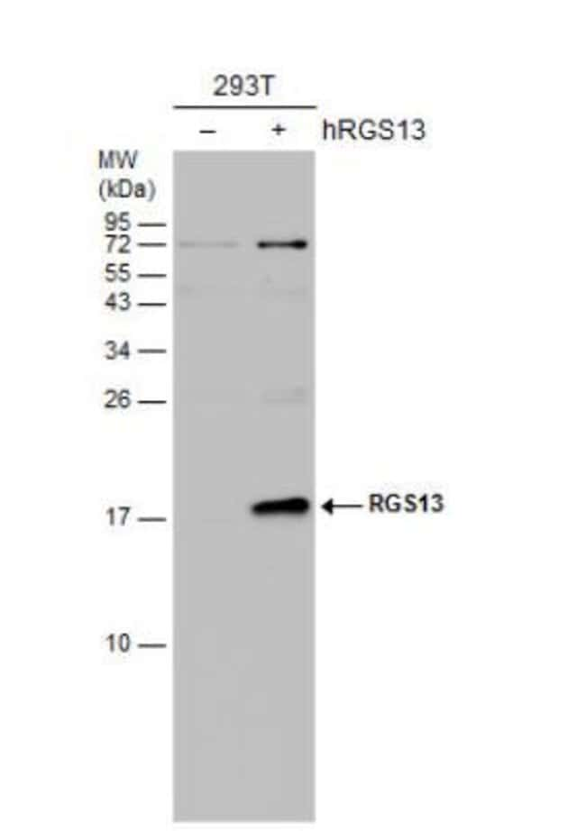 anti-RGS13, Polyclonal, Novus Biologicals 0.1mg; Unlabeled:Life Sciences