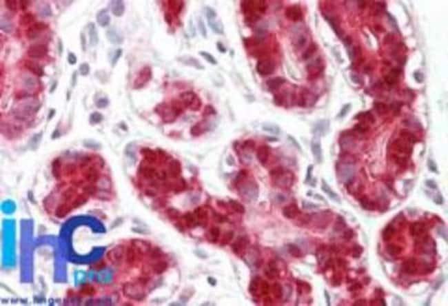 anti-RIG-I, Polyclonal, Novus Biologicals:Antibodies:Primary Antibodies