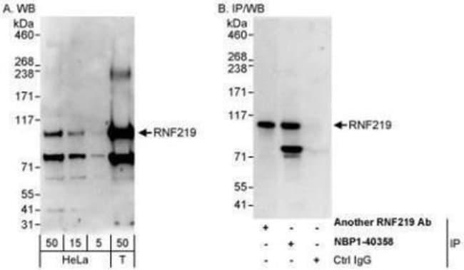 anti-RNF219, Polyclonal, Novus Biologicals 0.1mL; Unlabeled:Life Sciences