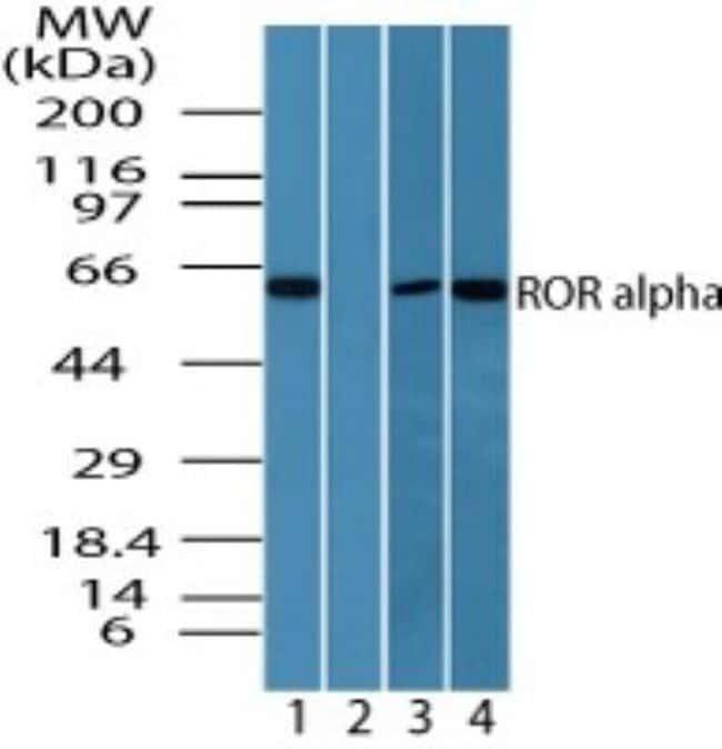 anti-ROR alpha/NR1F1, Polyclonal, Novus Biologicals:Antibodies:Primary