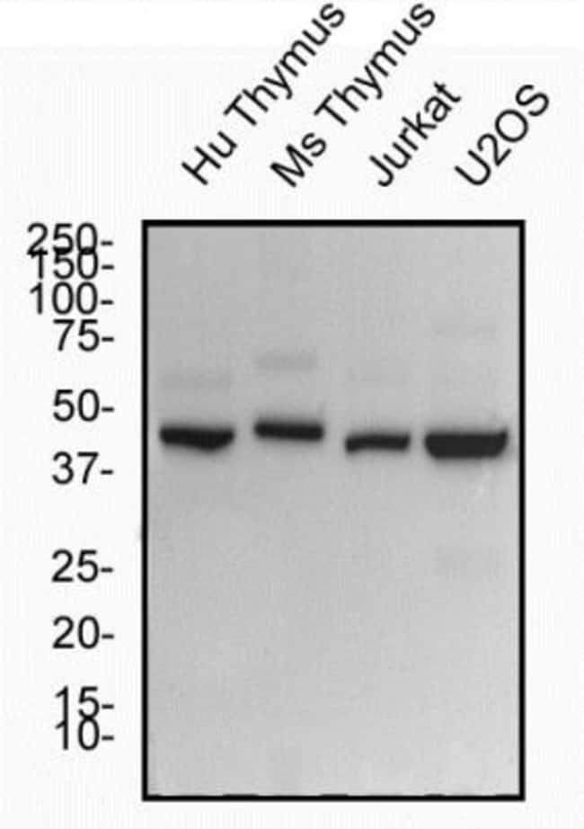 ROR gamma/RORC/NR1F3 Rabbit anti-Human, Polyclonal, Novus Biologicals:Antibodies:Primary