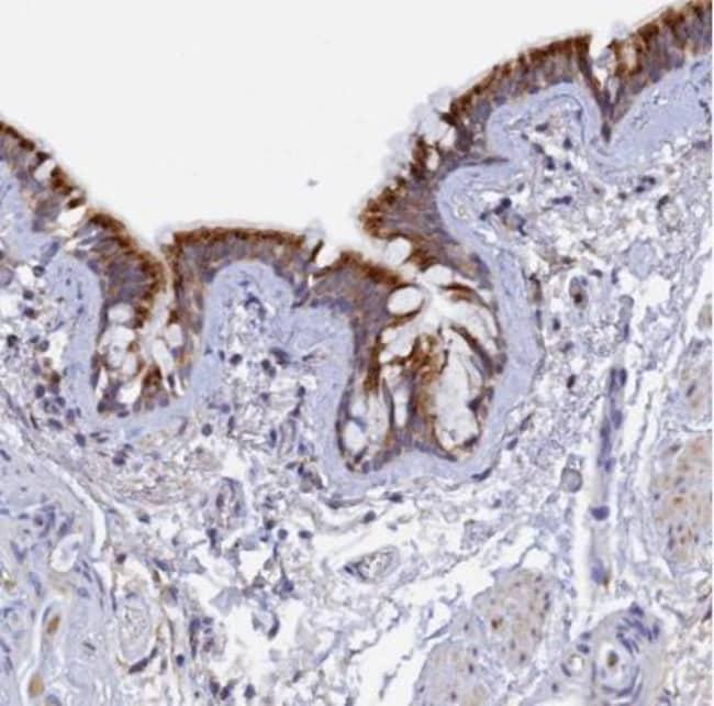 anti-RPGRIP1L, Polyclonal, Novus Biologicals 0.1mL; Unlabeled:Life Sciences