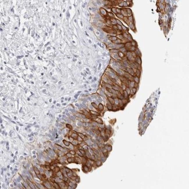 anti-RPH3AL, Polyclonal, Novus Biologicals 0.1mL; Unlabeled:Life Sciences
