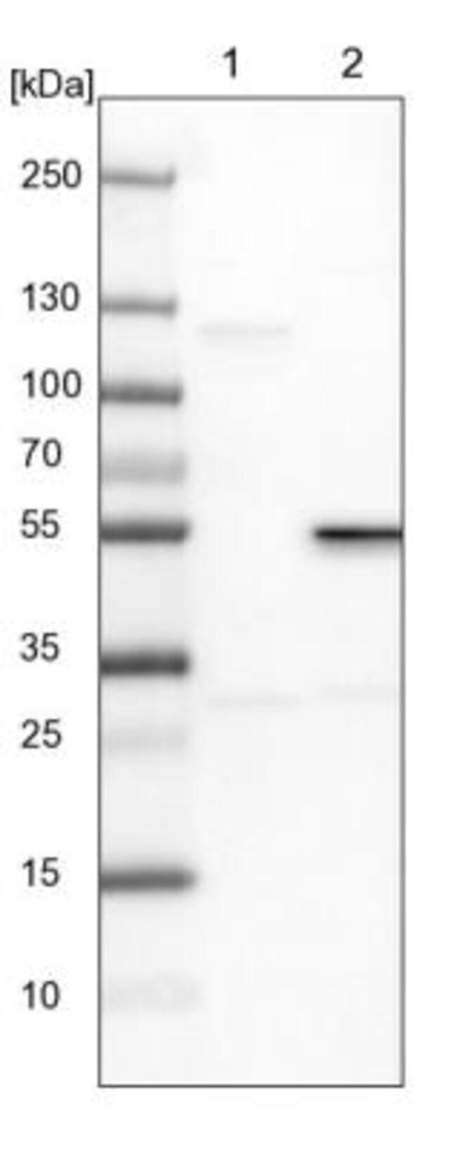 RPIP8 Rabbit anti-Human, Rat, Polyclonal, Novus Biologicals 0.1mL; Unlabeled:Life