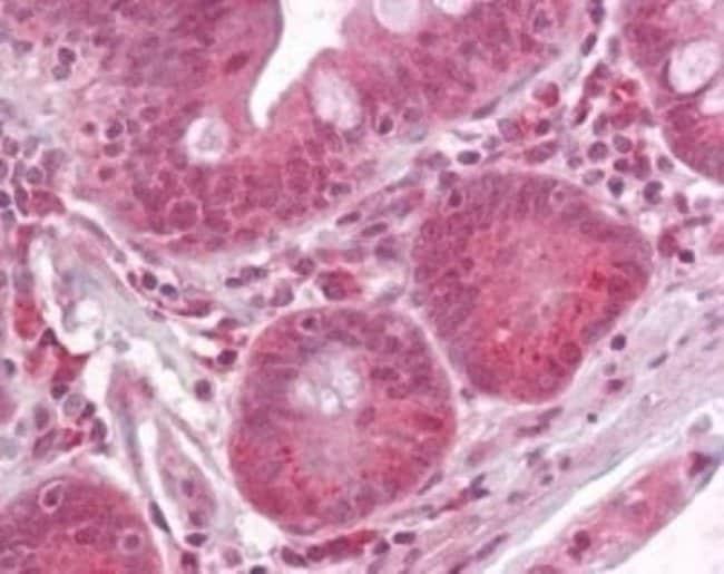 anti-RPTOR, Polyclonal, Novus Biologicals:Antibodies:Primary Antibodies