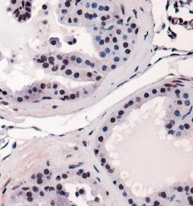 anti-RUNX2/CBFA1, Polyclonal, Novus Biologicals:Antibodies:Primary Antibodies