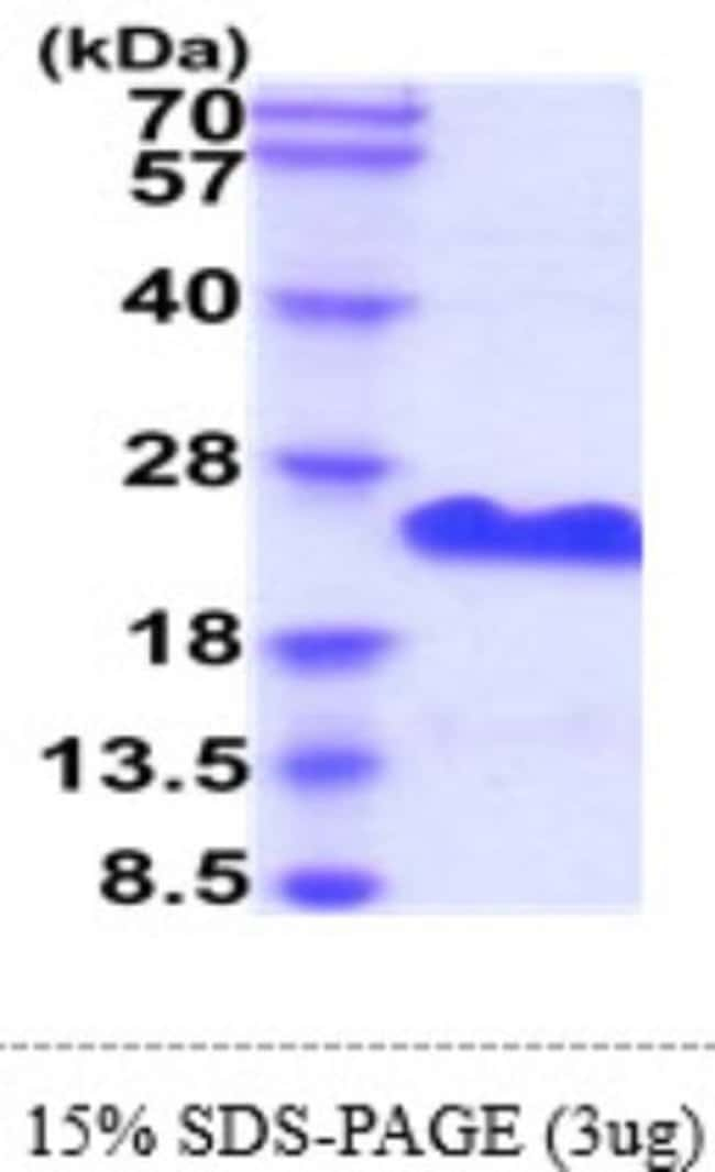 Novus Biologicals Recombinant Human CD20 Protein 50 µg:Life Sciences