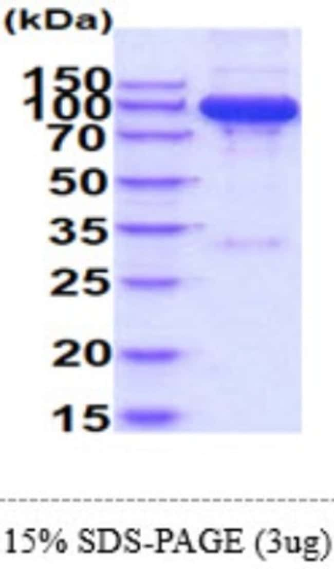 Novus Biologicals Recombinant Human Semaphorin 7A Isoform 1 Protein 10