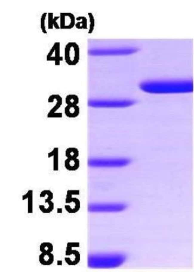 Novus Biologicals Human 14-3-3 sigma/Stratifin Recombinant Protein 0.1mg:Life