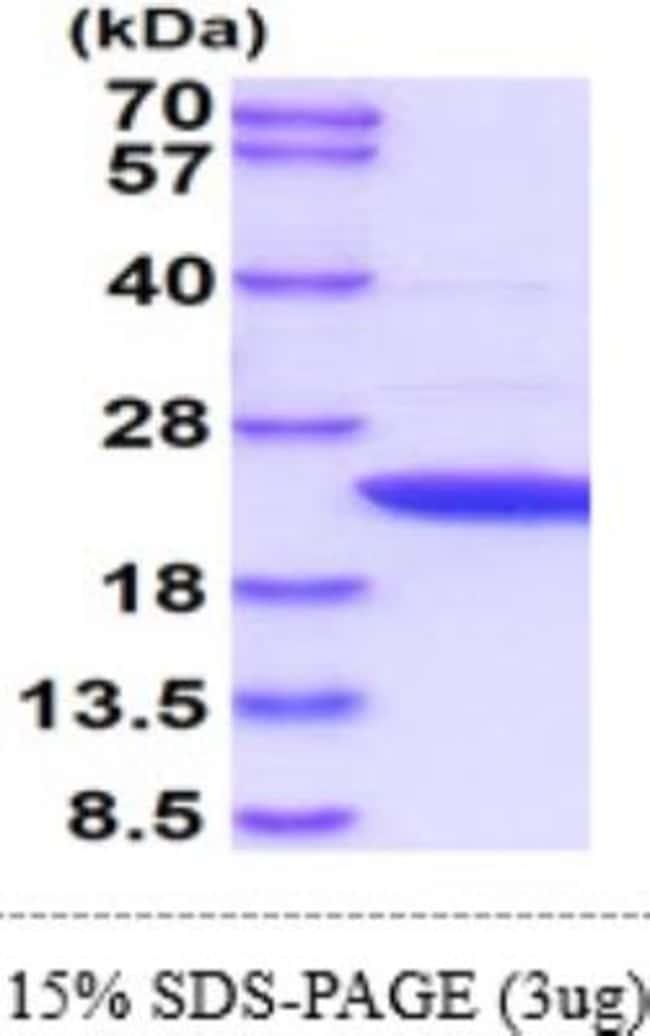 Novus Biologicals Human APRT Protein 0.1mg; Unlabeled:Life Sciences