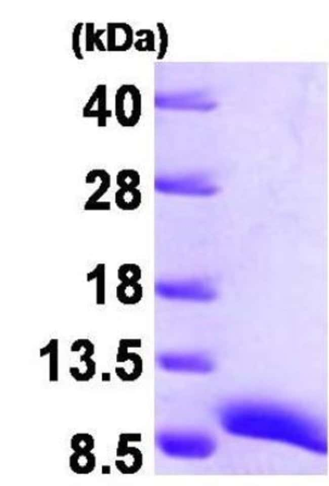 Novus Biologicals Human ATOX1 Protein 0.1mg; Unlabeled:Life Sciences