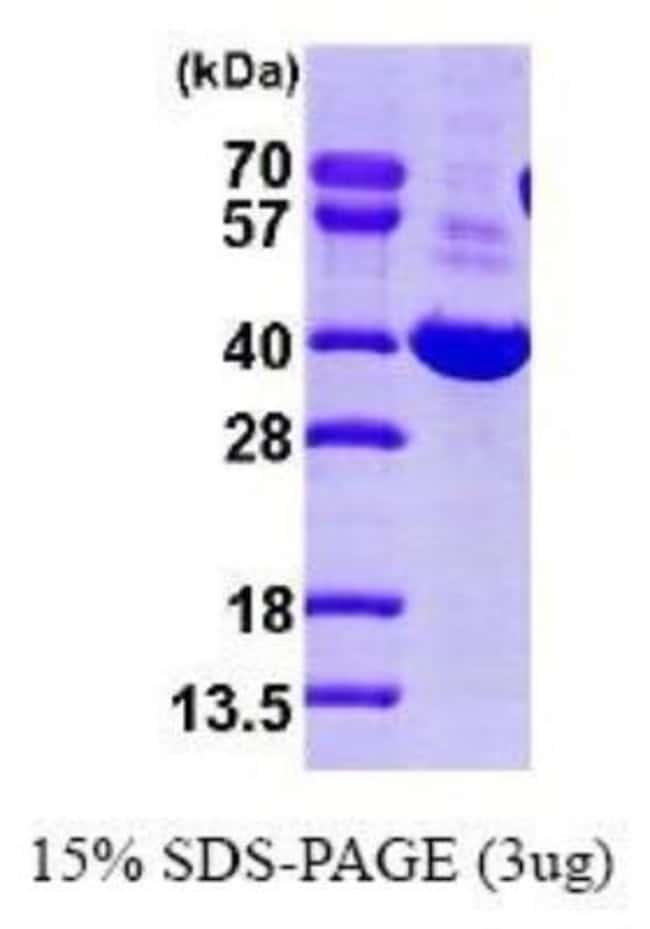 Novus Biologicals Human Aldo-keto Reductase 1C1/AKR1C1 Recombinant Protein