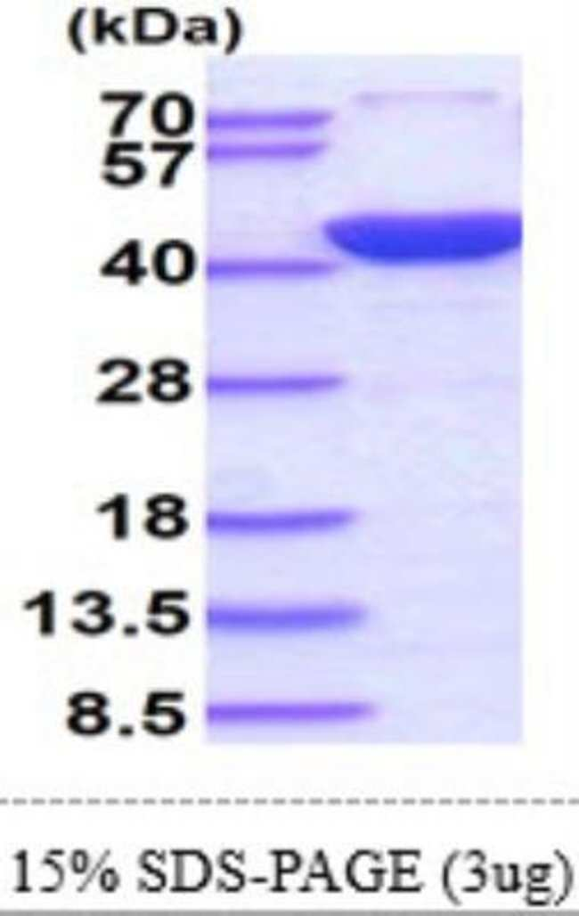 Novus BiologicalsHuman Annexin A2 Recombinant Protein 0.1mg:Biochemical