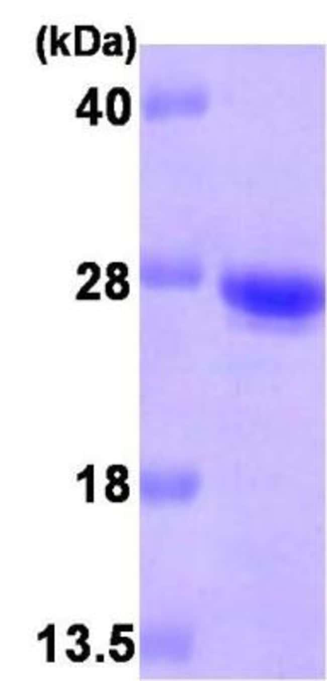 Novus Biologicals Human Cysteine Dioxygenase Type 1 Recombinant Protein