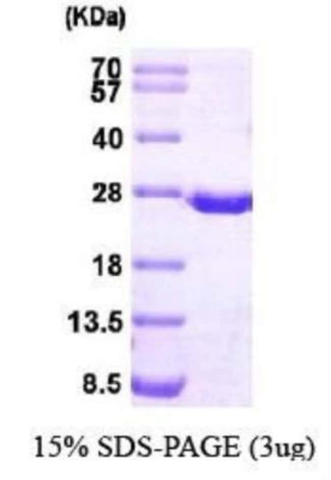 Novus Biologicals Human Dihydrofolate Reductase/DHFR Recombinant Protein