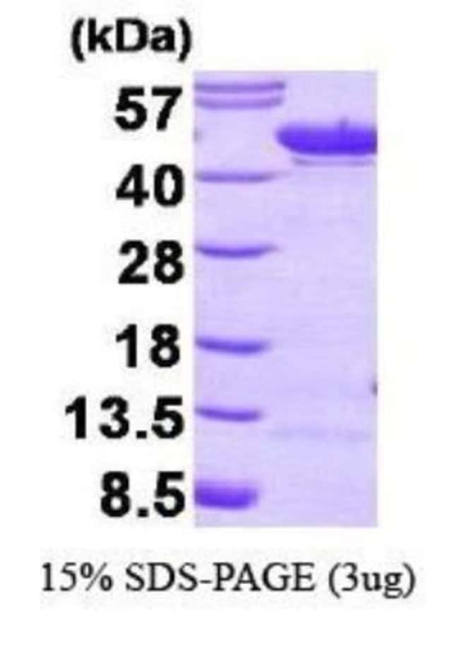 Novus Biologicals Human Enolase 1 Recombinant Protein 0.1mg:Life Sciences