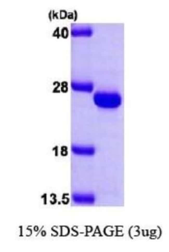 Novus Biologicals Human Frataxin Recombinant Protein 0.1mg:Life Sciences