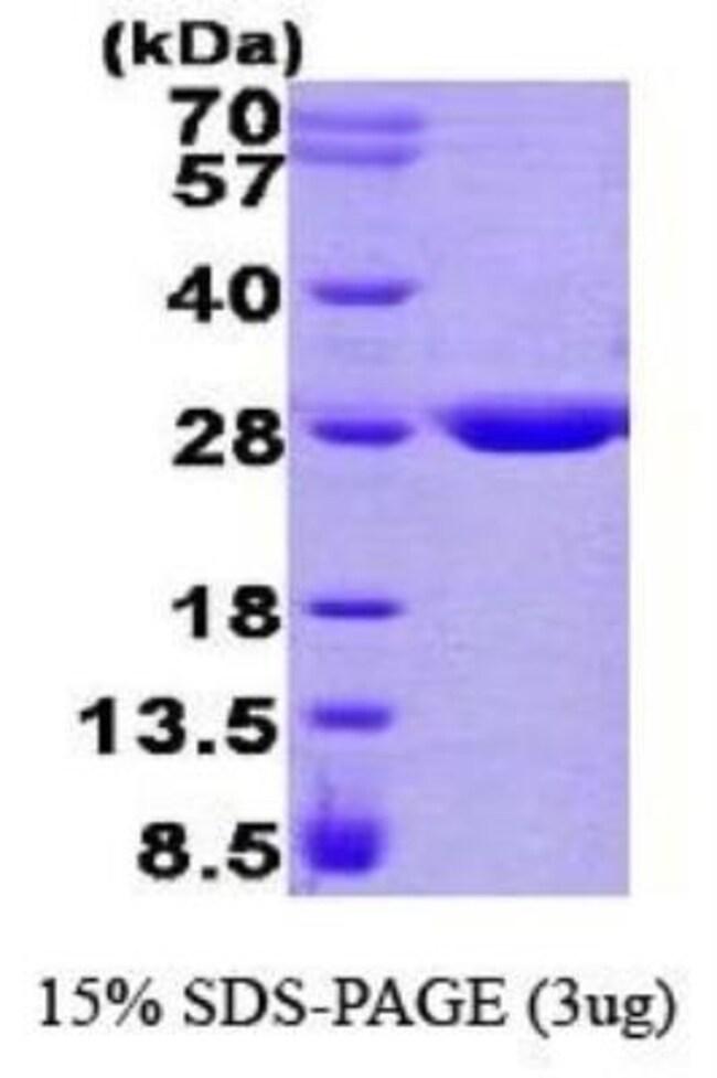 Novus Biologicals Human GSTZ1 Protein 0.1mg; Unlabeled:Life Sciences