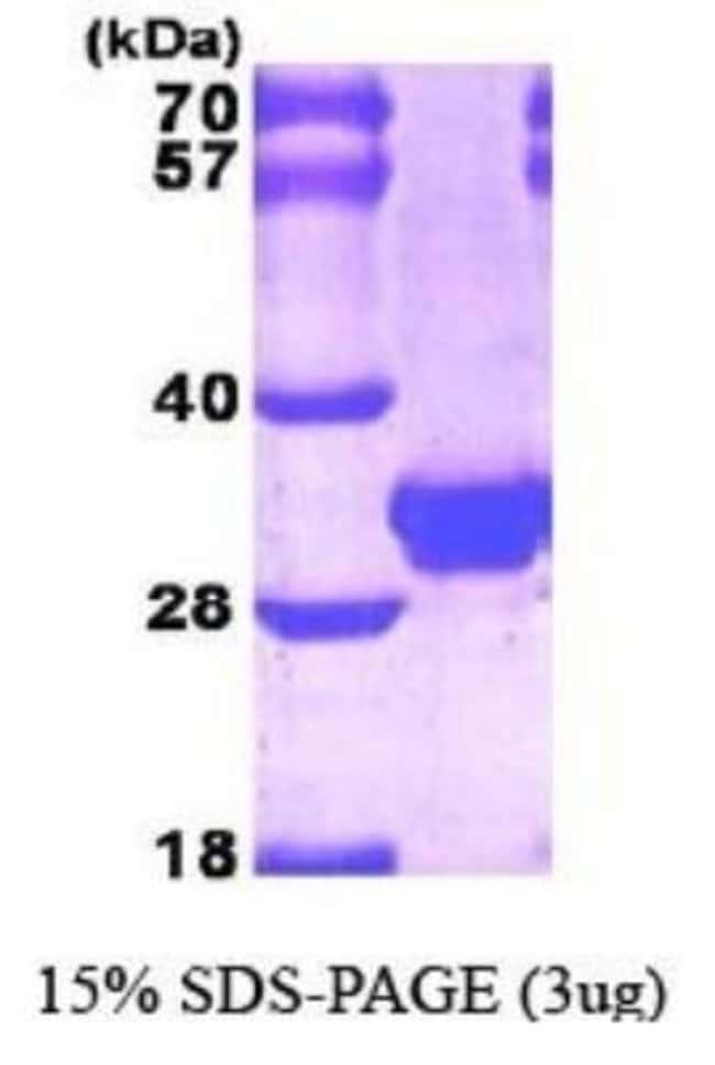 Novus BiologicalsHuman Galectin-3 Protein 0.1mg; Unlabeled:Biochemical