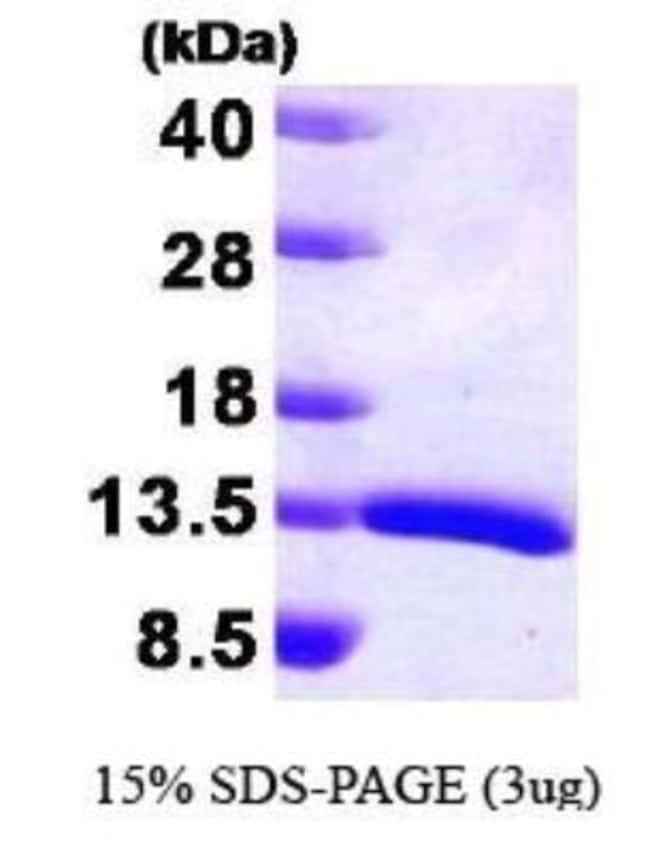 Novus Biologicals Human HDGF Protein 0.1mg; Unlabeled:Life Sciences