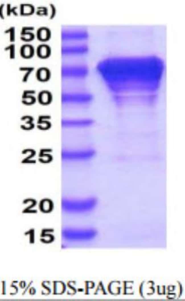 Novus Biologicals Human HSPA8/HSC71/Hsc70 Recombinant Protein 0.1mg:Life
